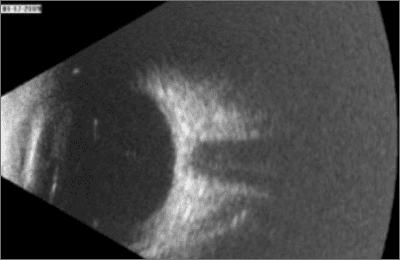 B-scan ultra sound
