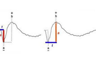Electroretinography (ERG)